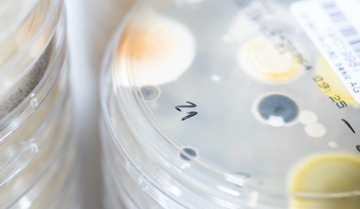 Mikrobiologische-Verunreinigung-Lebensmittel-Rückrufe-2019